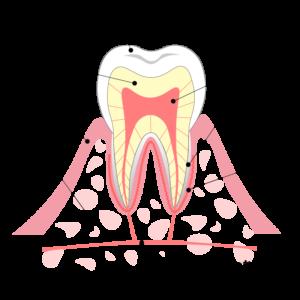 大東にし歯科医院 抜歯の流れ3