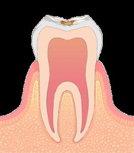 大東にし歯科医院 (歯の表面の浅い虫歯)