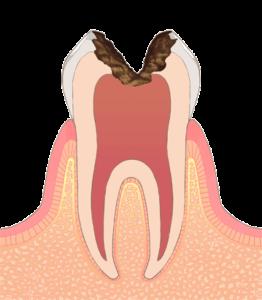 大東にし歯科医院 (神経まで進行した深い虫歯)