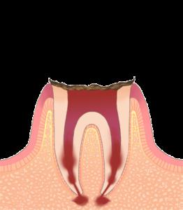 大東にし歯科医院 (歯の根まで進行した虫歯)