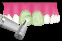 大東にし歯科医院 歯面の磨き上げ(ポリッシング)