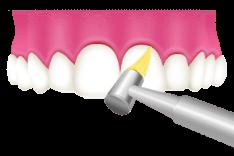 大東にし歯科医院 歯面と歯の隙間の清掃