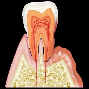 大東にし歯科医院 歯周病と全身疾患との関係