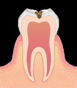 大東にし歯科医院 (歯の中のやや深い虫歯)